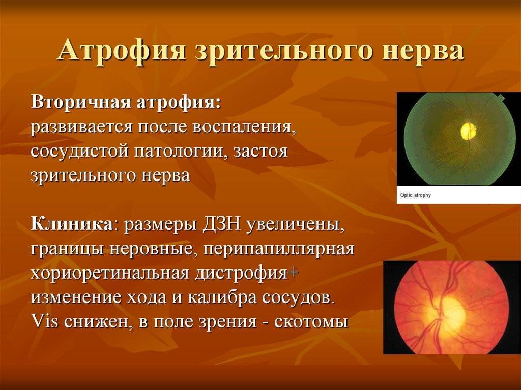 """Чазн - частичная атрофия зрительного нерва глаза - причины, симптомы и эффективное лечение, код по мкб-10. московский офтальмологический центр. - moscoweyes.ru - сайт офтальмологического центра """"мгк-диагностик"""""""