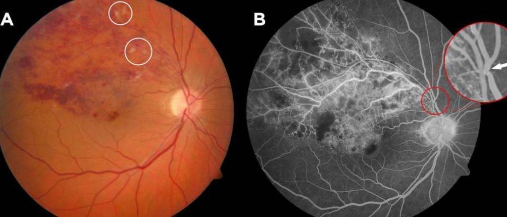 Тромбоз вен и артерий сетчатки глаза: стадии развития