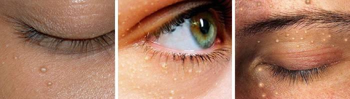 Белые точки под глазами