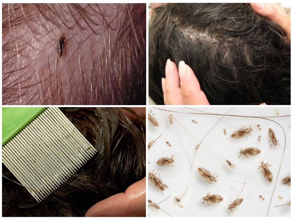 лечение вшей и гнид у детей