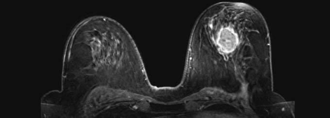 Мрт молочных желез: что показывает, как делают