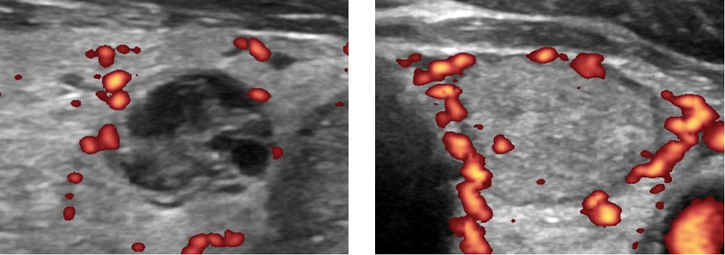 О чем говорит усиление кровотока в щитовидной железе? лечение узлов с усиленным кровотоком