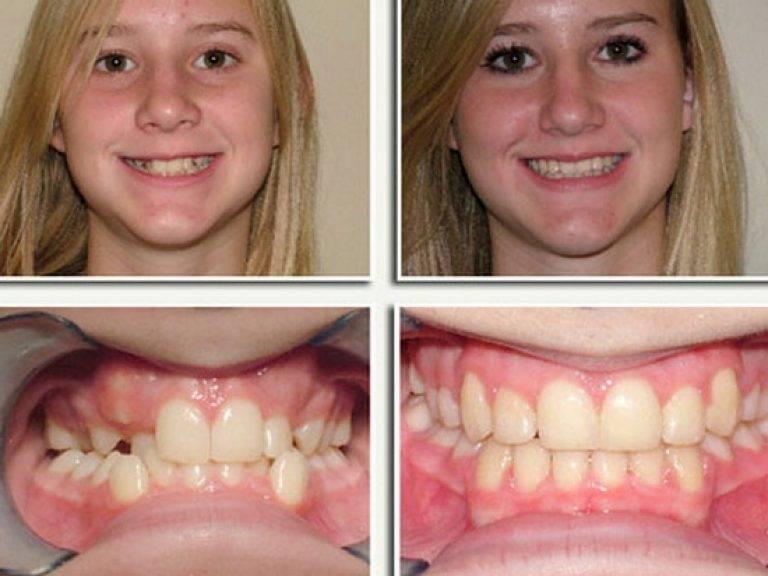 Болят зубы от брекетов: что делать советы стоматолога - много зубов