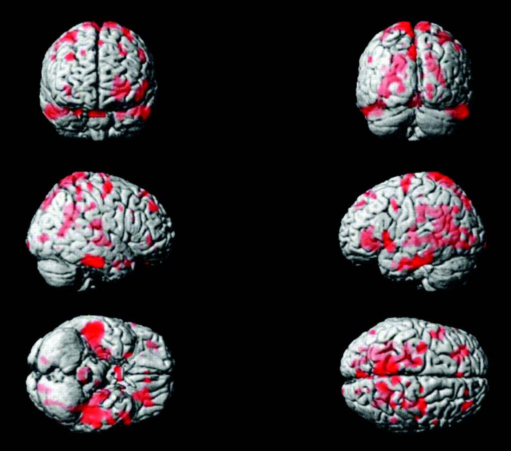 Резидуальная энцефалопатия: что это, причины и формы, лечение