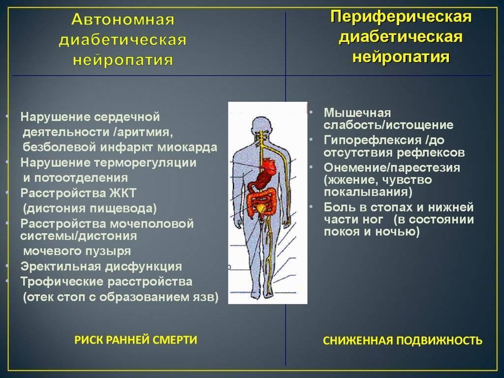 Лечение препаратами нейропатии нижних конечностей
