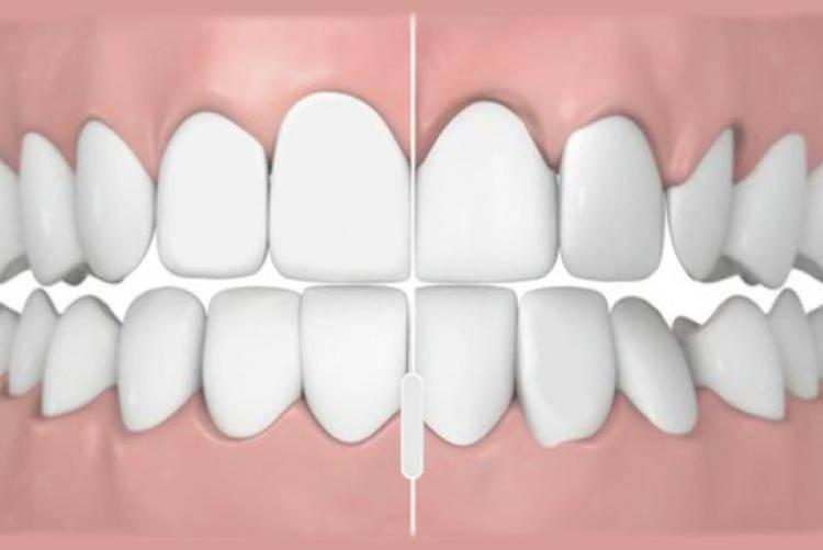 Идеальный прикус зубов
