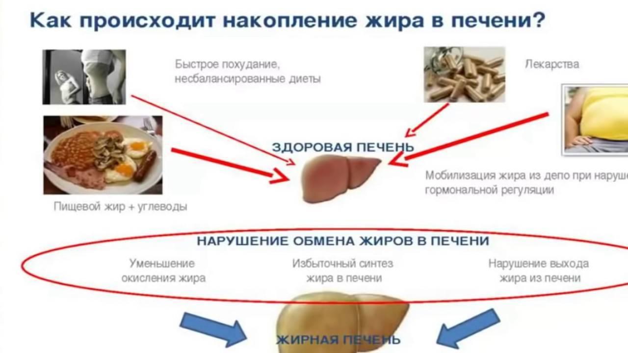 Гепатоз печени: симптомы, лечение и диета