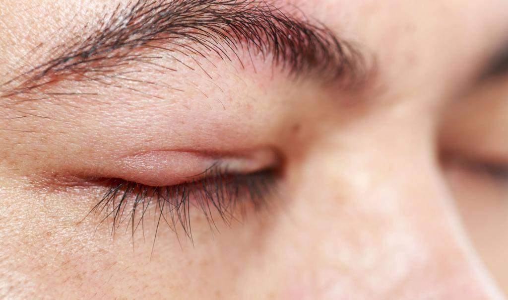 Блефарит: причины, симптомы, диагностика и лечение
