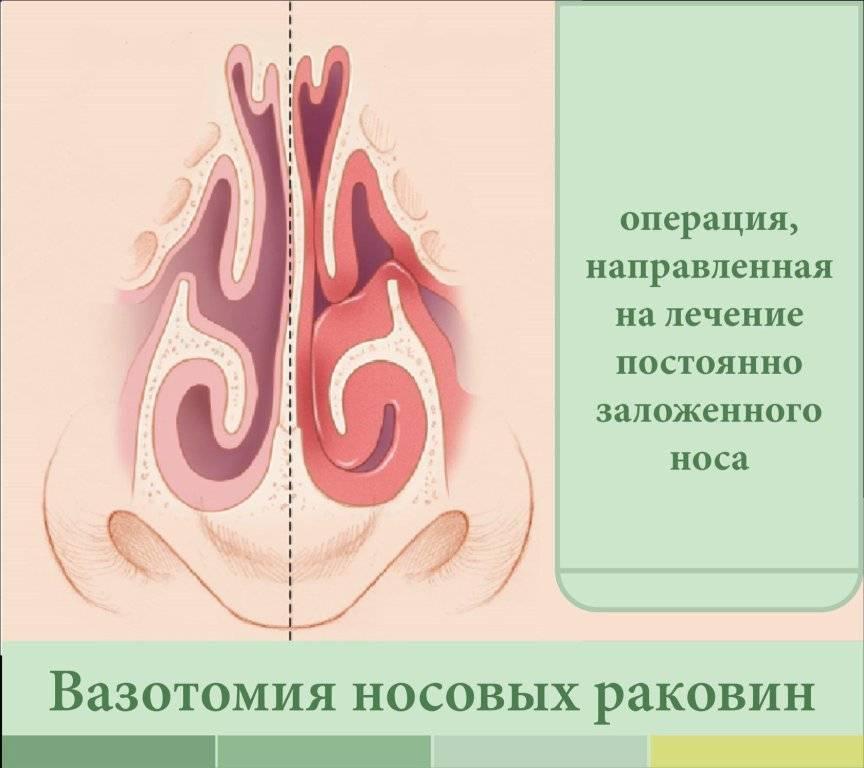 Вазотомия