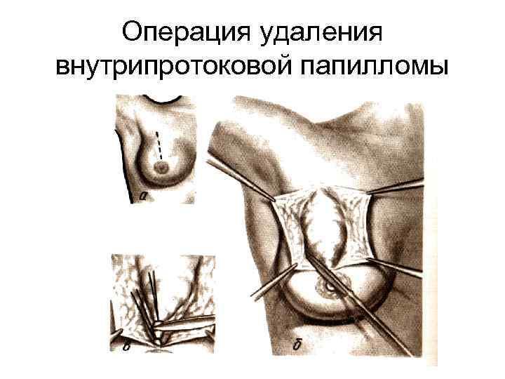 Внутрипротоковая папиллома молочной железы, ее виды, диагностика и лечение