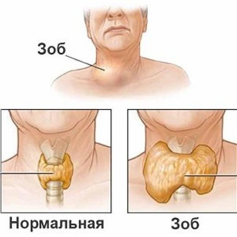 лечение многоузлового зоба щитовидной железы