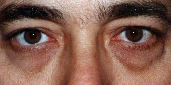 Гематома на глазу лечение   как убрать гематому под глазом