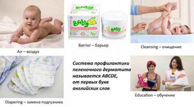 Пелёночный дерматит у детей