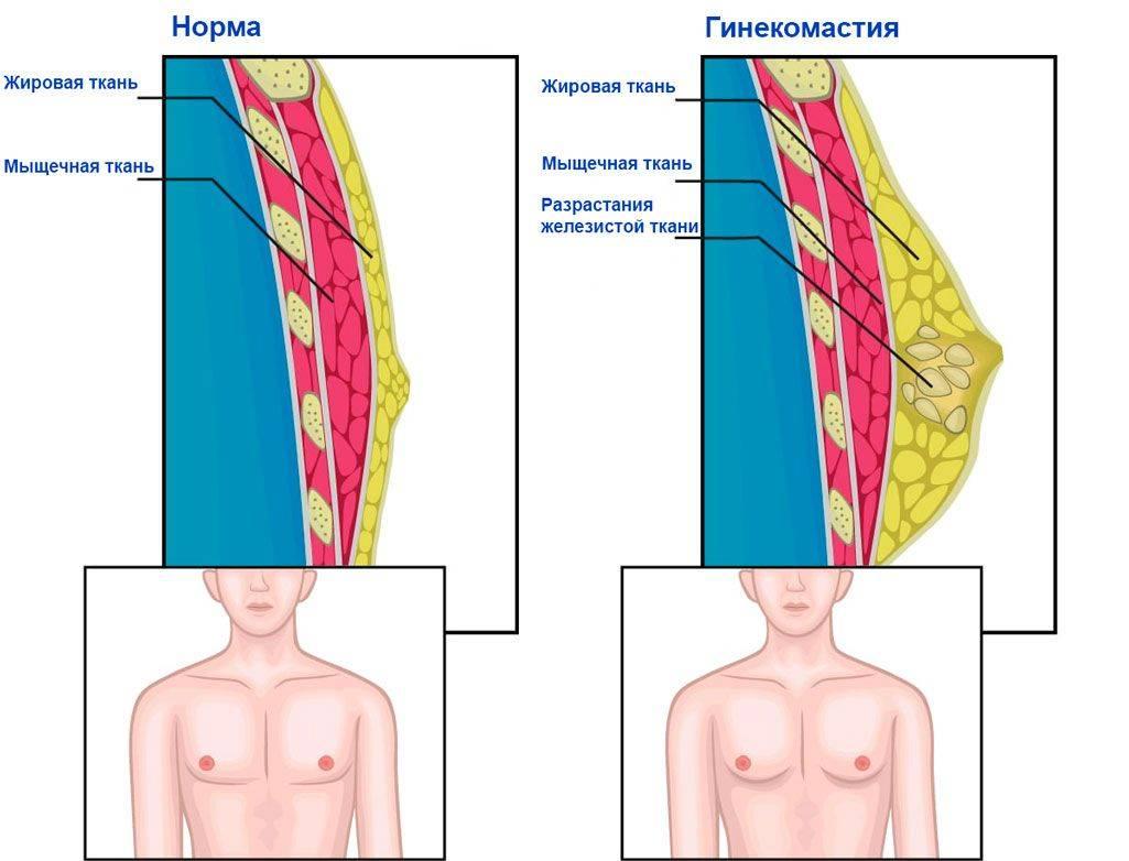 Ложная гинекомастия — как отличить, операция, реабилитация