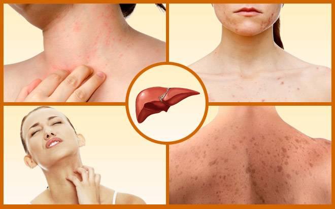 поражение кожи при заболеваниях печени