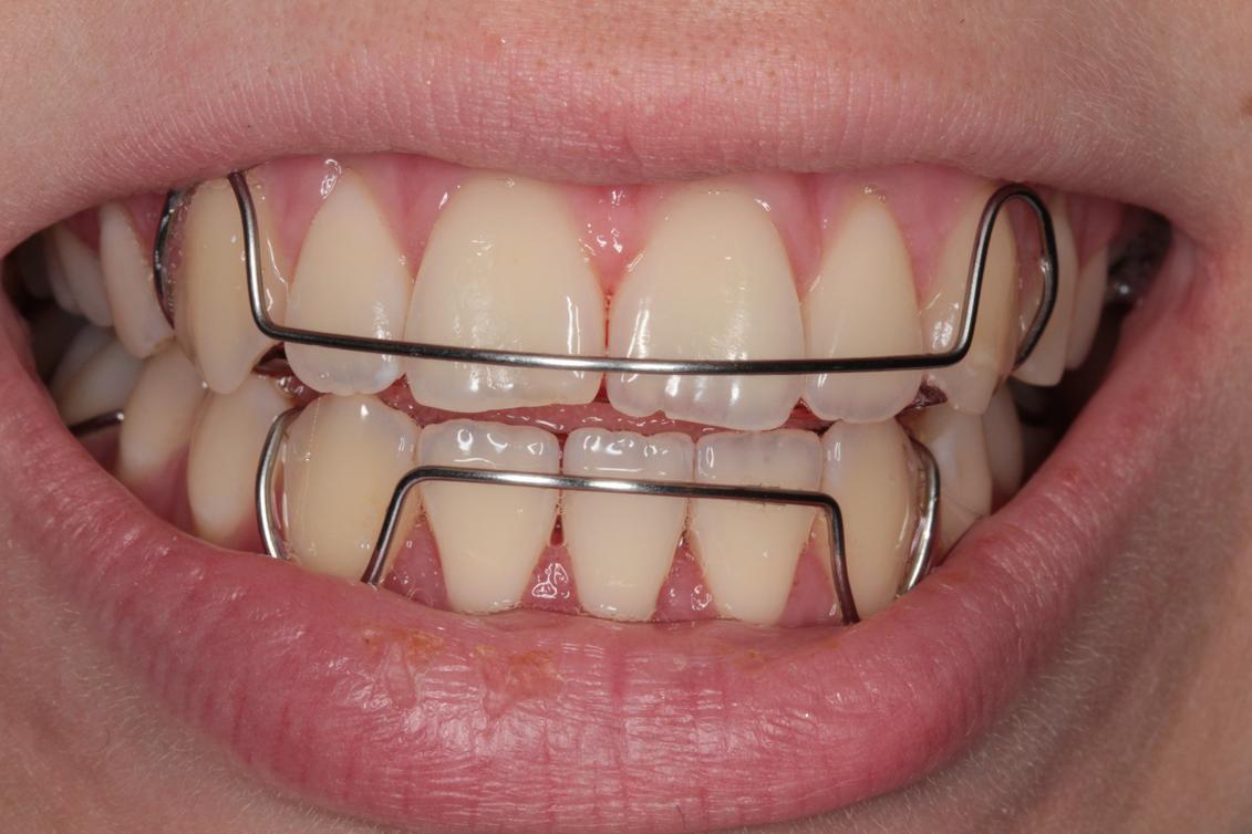 как снимают брекеты с зубов