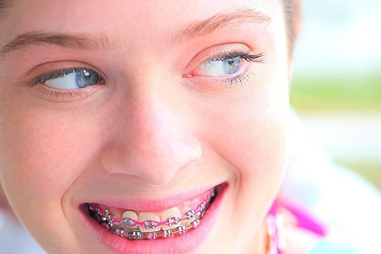 криво растет постоянный зуб у ребенка