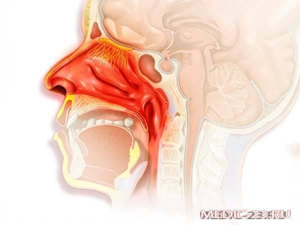 Заложенность носа без насморка у взрослых: причины, лечение медикаментами и народными средствами