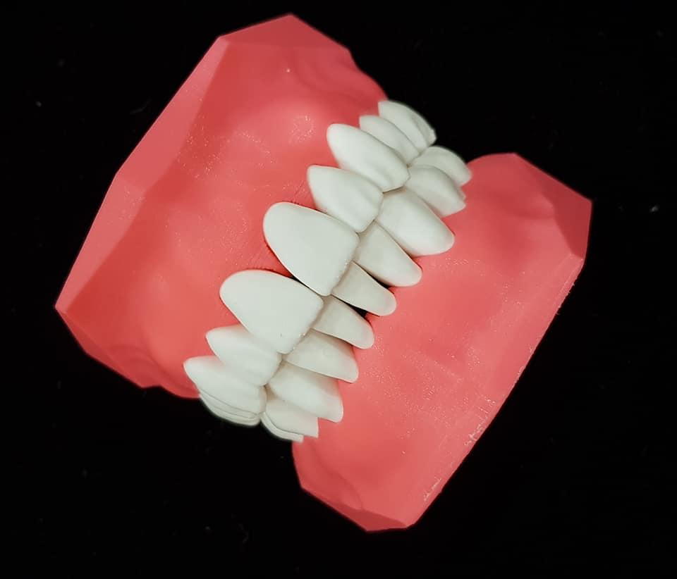 Молочный прикус:  советы по лечению зубов у детей