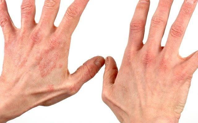 лечение гусеничного дерматита