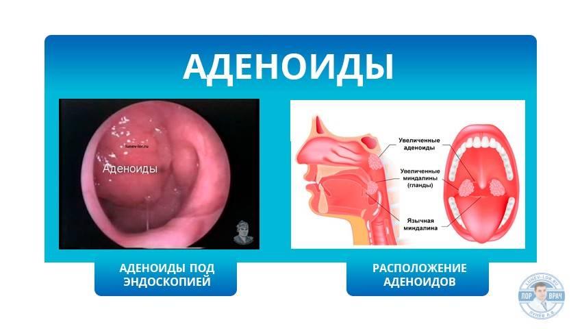 Фото аденоидов в носу: описание болезни