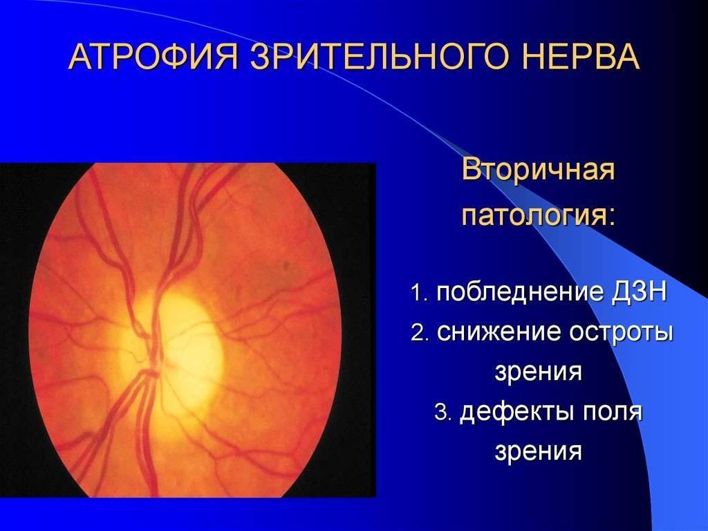 Симптомы и причины атрофии зрительного нерва
