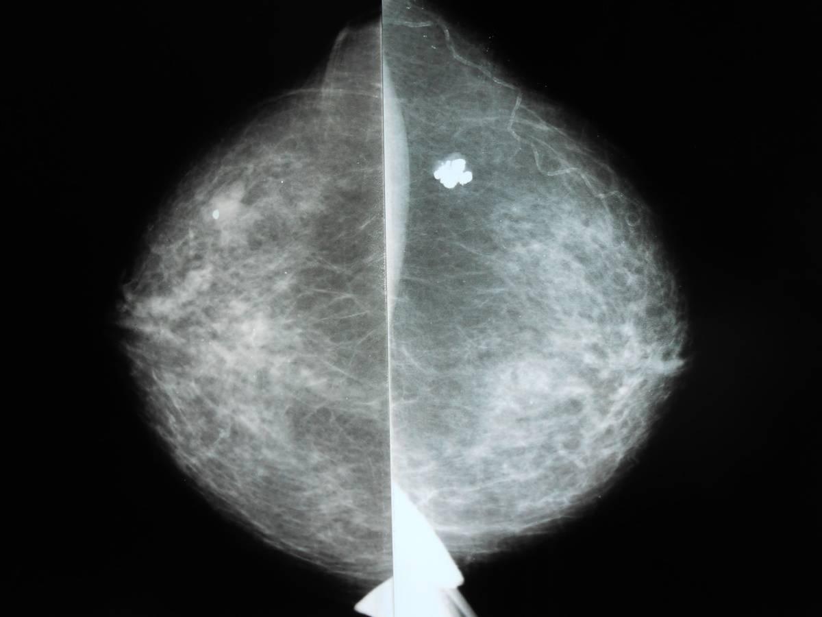 Фиброаденома молочной железы - симптомы  и лечение