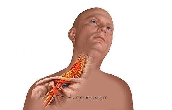 Невралгия плечевого сустава — развитие и возможные осложнения заболевания