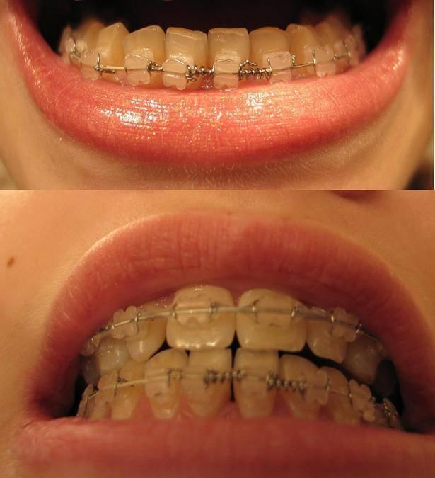 что ставят на зубы после брекетов