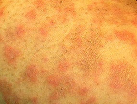 Мази и кремы от дерматита — список, цены, отзывы
