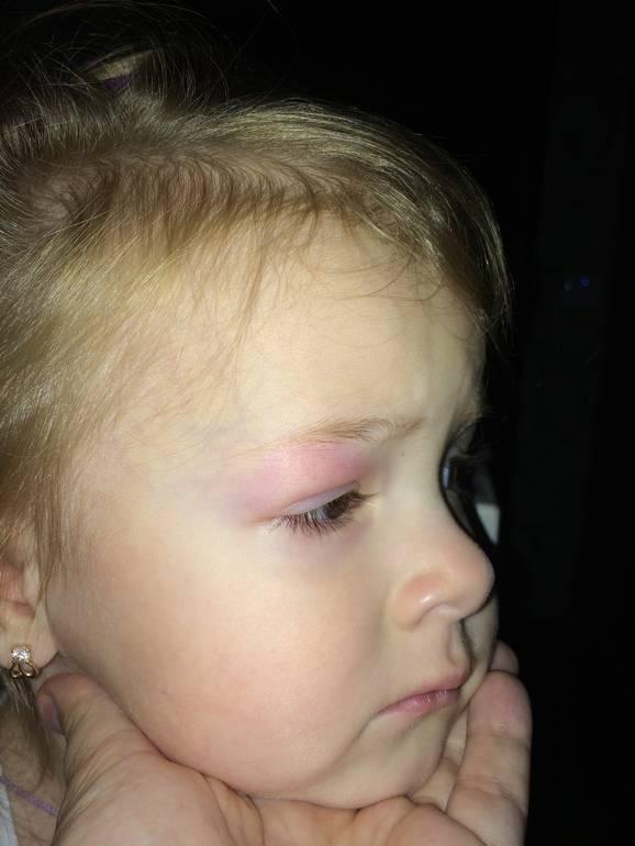 Укусил комар в область глаза и опухло веко — что делать?