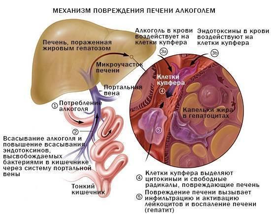 Печень алкоголика - симптомы, диагностика и лечение болезней, вызванных употреблением алкоголя