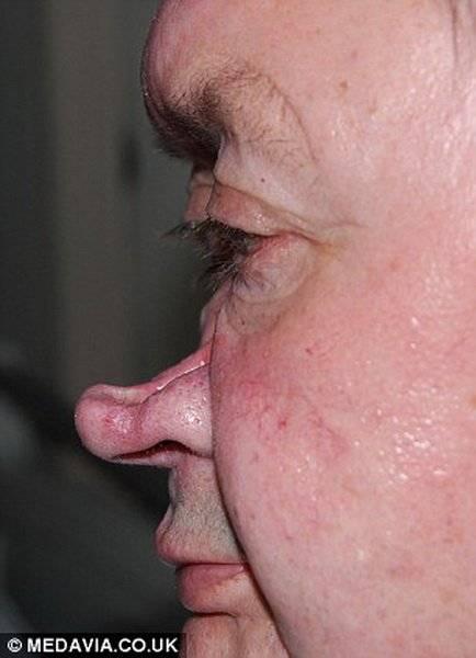 Доброкачественные опухоли полости носа: симптомы и лечение