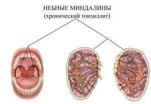 ангина белые пятна на миндалинах