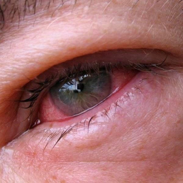 Причины и лечение острого кератита глаза