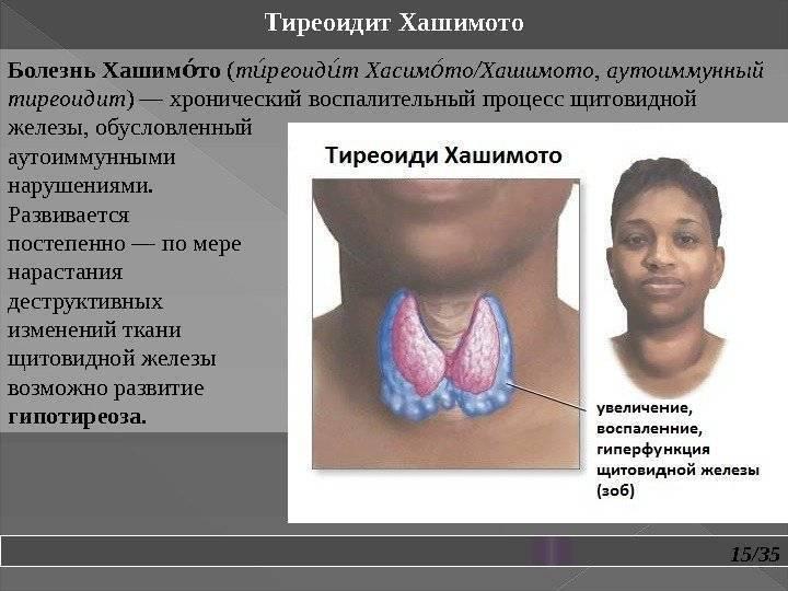 Тиреоидит щитовидной железы – особенности развития на различных стадиях