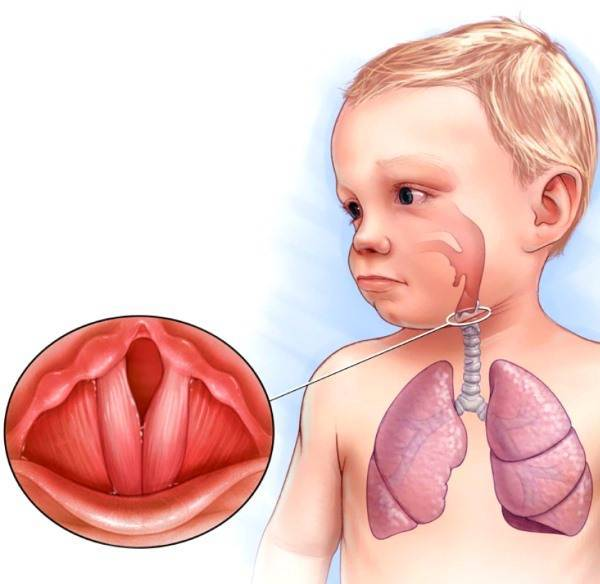 Ложный круп у детей: симптомы, причины и лечение заболевания