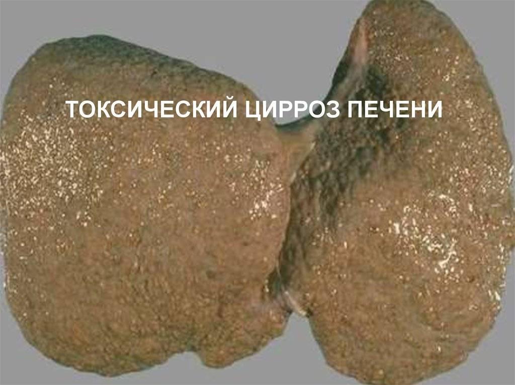 токсический цирроз печени сколько живут