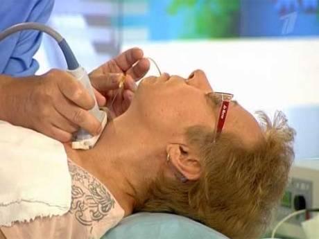 Что такое биопсия щитовидной железы и как она проводится?