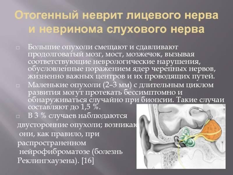 неврит слухового нерва что это такое