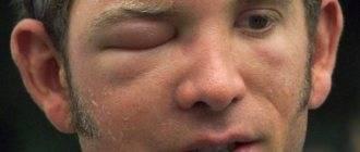 Отек после укуса мошки в глаз