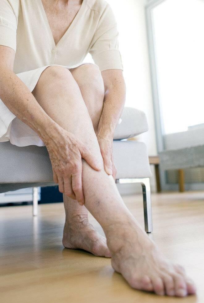 Варикозный(венозный) дерматит нижних конечностей: лечение(мази)