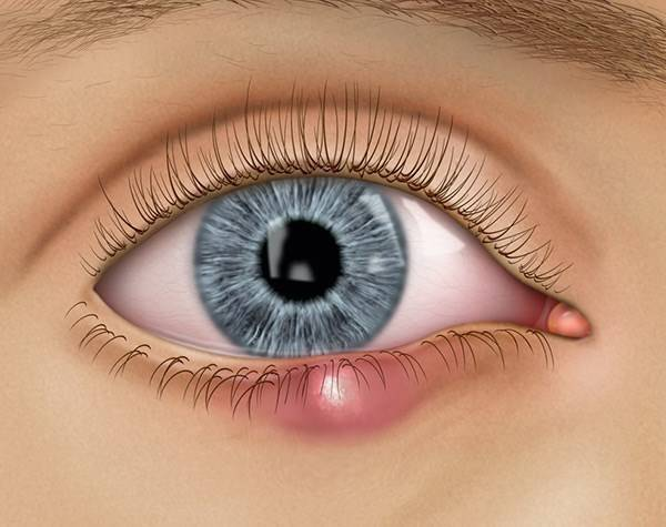 Лечение ячменя при грудном вскармливании. ячмень на глазу при грудном вскармливании