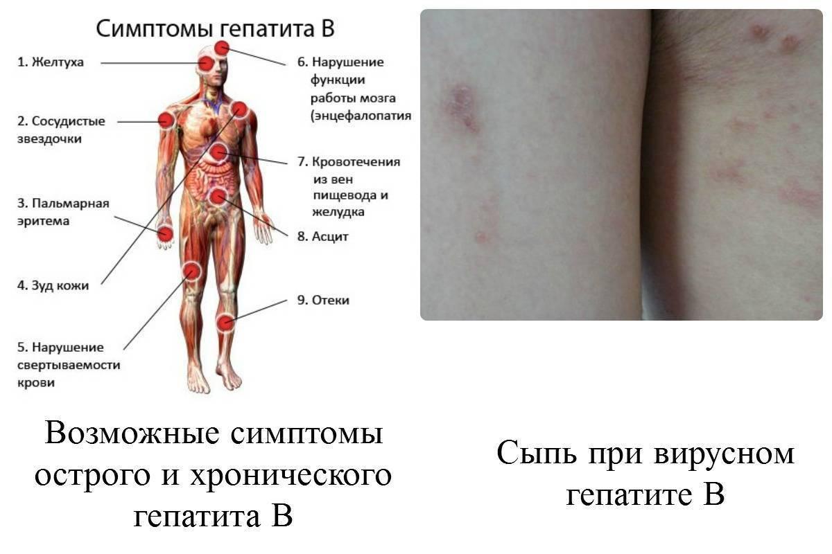 симптомы гепатита с у взрослых