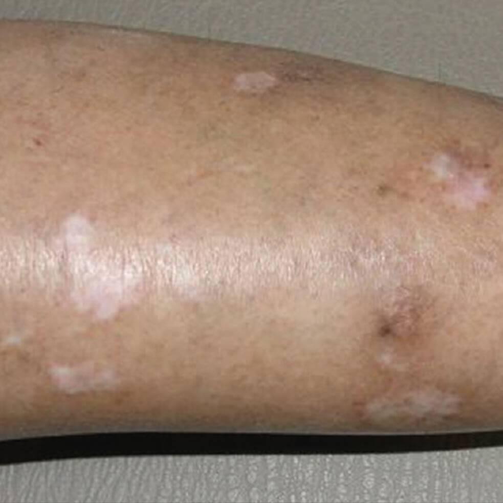 дерматит и дерматоз отличия