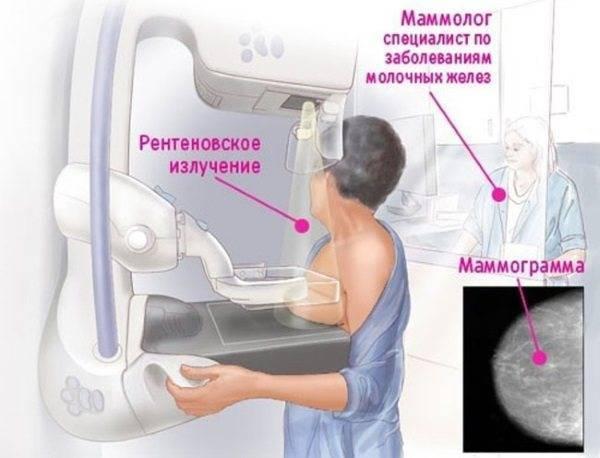 Отличие маммографии от узи молочных желез
