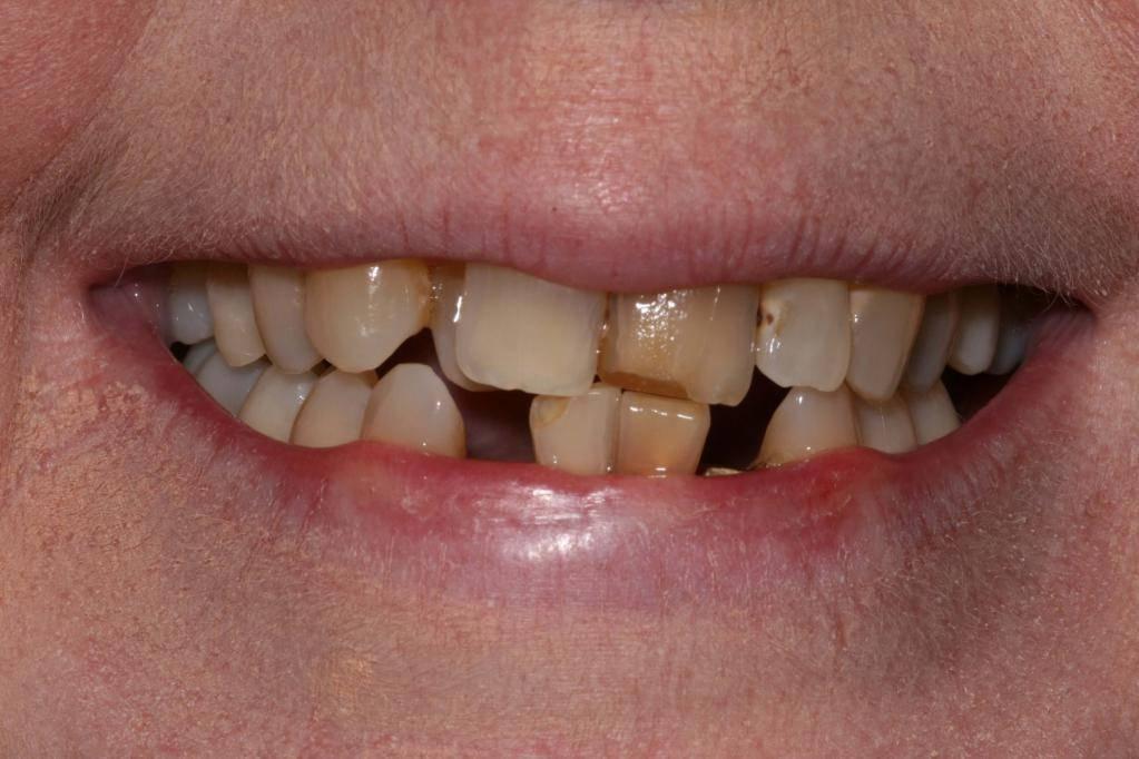 молочные нижние зубы кривые