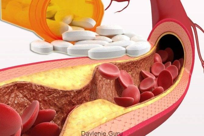 Статины от холестерина – самые эффективные и безопасные препараты в каждом поколении