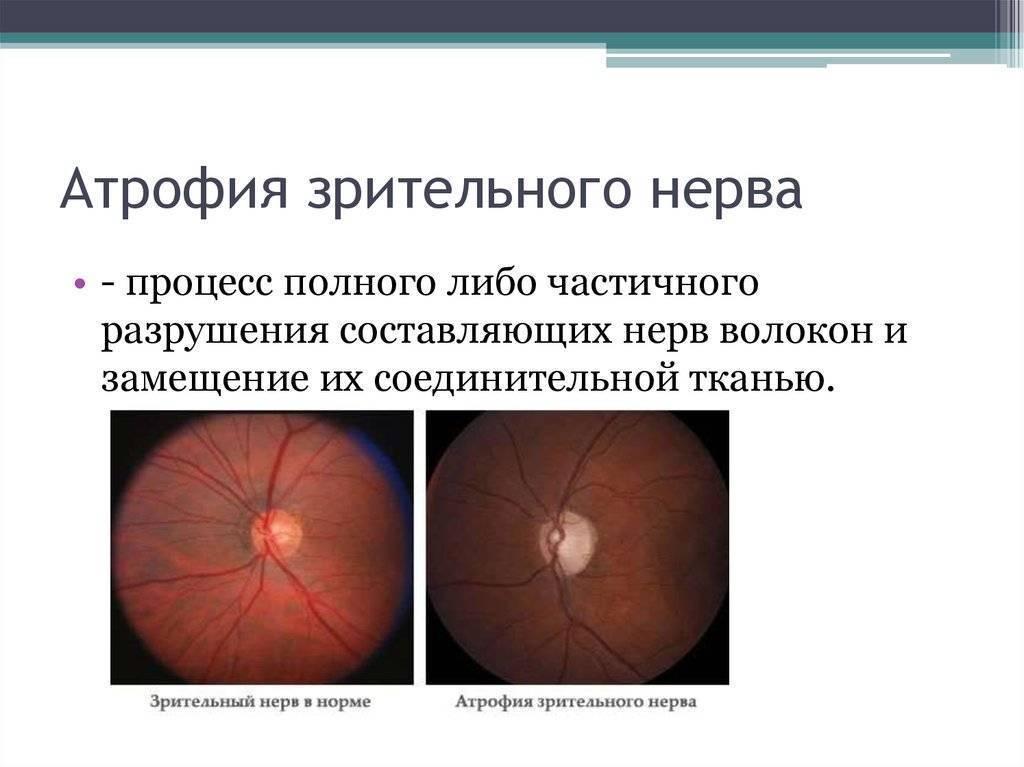 можно ли вылечить атрофию зрительного нерва