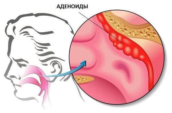 настойка прополиса при аденоидах у детей